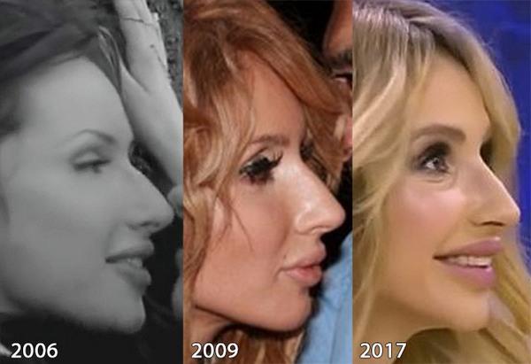 Светлана Лобода до и после пластики. Фото лица, носа, губ, груди. Биография певицы, возраст, параметры фигуры, рост и вес