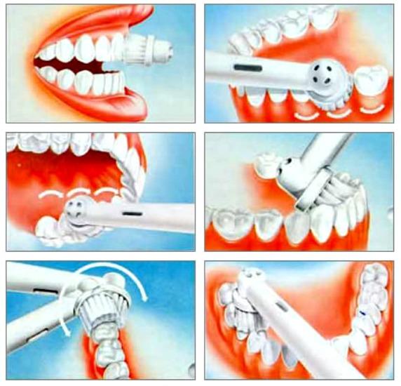 Ультразвуковая зубная щетка. Плюсы и минусы, отзывы врачей, рейтинг лучших и противопоказания