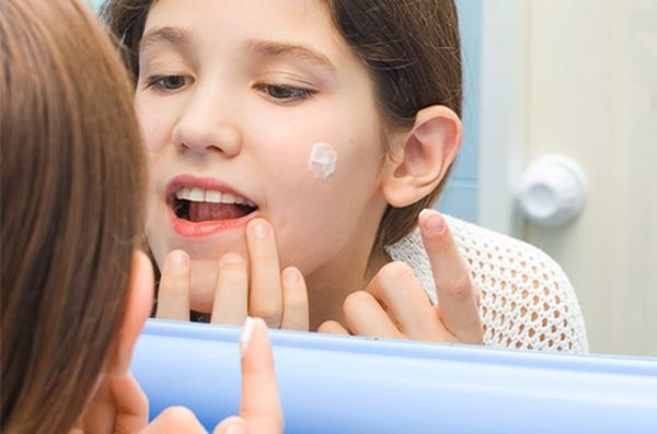 Как применять зубную пасту против прыщей на лице. Рецепт приготовления и применения, фото