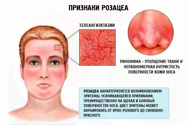 Аппараты для удаления пигментных пятен, шрамов, татуировок на лице и кожи тела. Лазерный, Фраксель, Элос, М22. Рейтинг и отзывы
