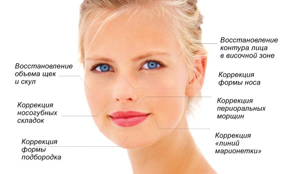 Биоармирование лица - что это такое, виды, как делают процедуру с гиалуроновой кислотой, нитями, филлерами, препараты. Фото и последствия