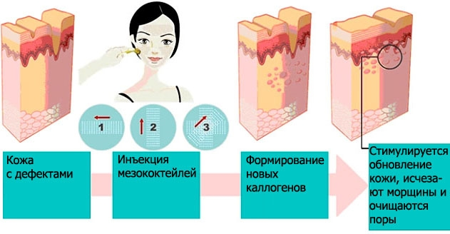 Что такое биоревитализация лица, чем отличается от мезотерапии, филлеров. Показания, противопоказания, последствия. Фото