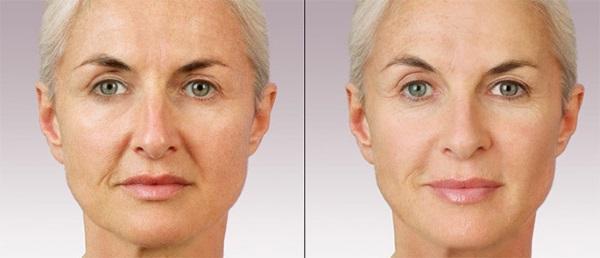 Булхорн – что это за операция, фото до и после, эффективность и последствия процедуры