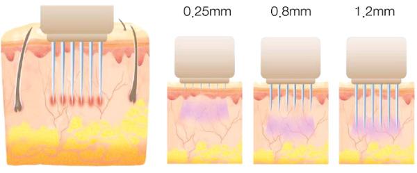 Фракционная мезотерапия лица - что это такое, как делается, эффективность от рубцов, растяжек, мешков под глазами, цена курса, фото до и после, отзывы