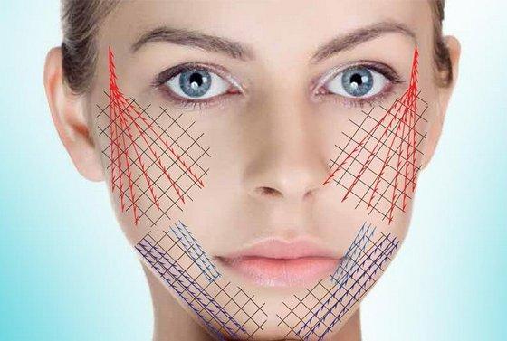 Как быстро избавиться от морщин на лбу в домашних условиях без ботокса, косметические средства, народные рецепты, косметологические процедуры