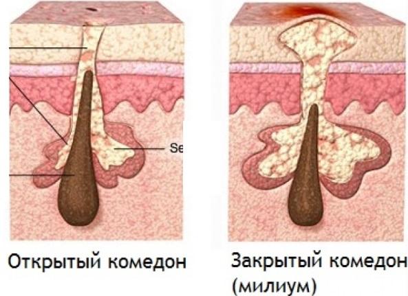 Как избавиться от жировиков на лице. Лечебные мази, кремы, лекарства, народные рецепты и средства