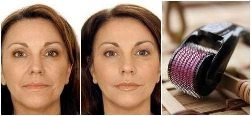 Мезороллер для лица: какой выбрать, как использовать в домашних условиях, инструкция, фото до и после