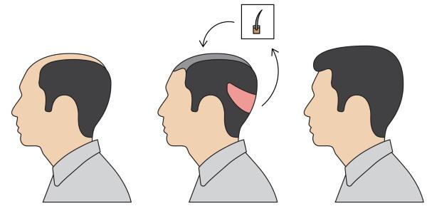 Методы пересадки волос на голове для мужчин и женщин. Как проходит операция, HFE, цены клиник, результаты, фото