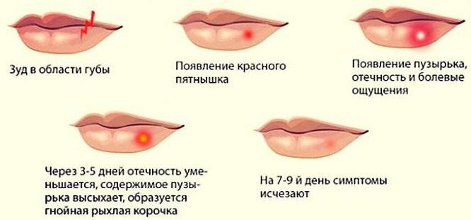 Тетрациклиновая мазь от прыщей на лице. Инструкция по применению, фото, отзывы, цена