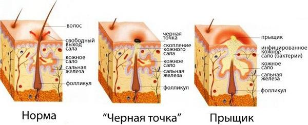 Угревая сыпь на лице. Причины и лечение народными средствами, антибиотиками, травами у подростков и взрослых в домашних условиях