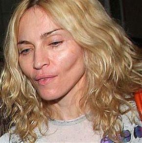 Неудачные пластические операции. Фото страшных российских и голливудских звезд, мужчин и женщин