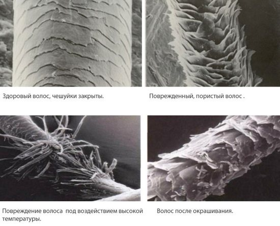 Жирные волосы у корней и по всей длине, сухие на кончиках, выпадают. Причины и лечение: шампуни, маски, масла, бальзамы