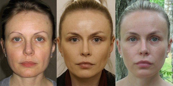 Эндоскопическая подтяжка лица: лба и бровей, шеи, скул, височной части. Как проводится, фото, реабилитация и последствия
