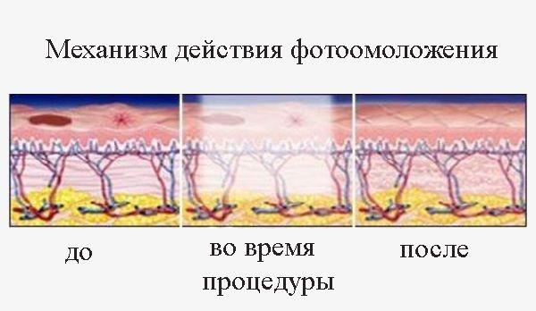 Фотоомоложение лица - что это такое, плюсы и минусы, фото до и после, показания и противопоказания