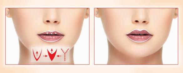 Хейлопластика губ: фото до и после, виды, показания и противопоказания. Как проходит операция и реабилитация