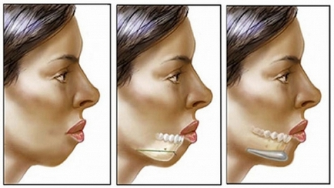 Как убрать брыли на лице быстро в домашних условиях