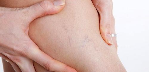 Липолитики для похудения: уколы, коктейли, в таблетках. Стоимость, фото до и после, отзывы врачей