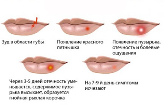 Мази от рубцов и шрамов на лице после прыщей, ветрянки, блефаропластики, операции. Эффективные и недорогие средства