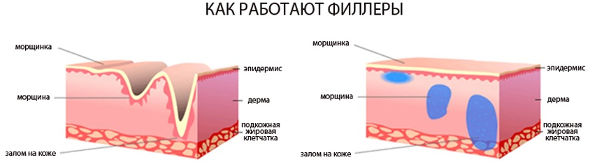 Филлеры в носогубки. Отзывы, фото до и после коррекции. Эффективность процедуры, последствия и возможные осложнения