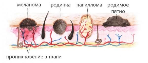 Новообразования на коже: фото и описание на голове, руках, лице и теле. Как лечить доброкачественные и злокачественные новообразования