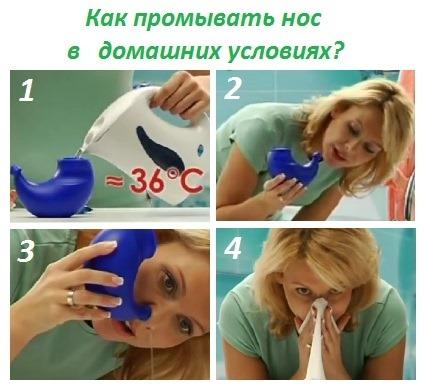 Операция на перегородку носа: послеоперационный период, уход за носом после исправления, реабилитация. Фото