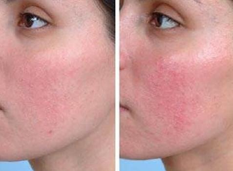 Тональный крем на год - что за процедура, микроинъекции от неровностей кожи, синяков под глазами, осветление, увлажнение. BB Ideal Skin Glow