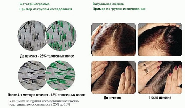 Витамины для волос от выпадения и для роста. Рейтинг лучших из аптеки: эффективные и недорогие препараты