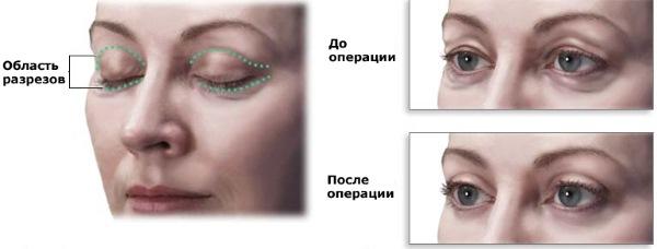 Блефаропластика. Фото после операции по дням. Осложнения, восстановление после круговой, нижней, верхней. Реабилитация, последствия