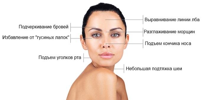 Инъекции Ботокса от морщин на лице. Фото до и после, цена, последствия, противопоказания процедуры