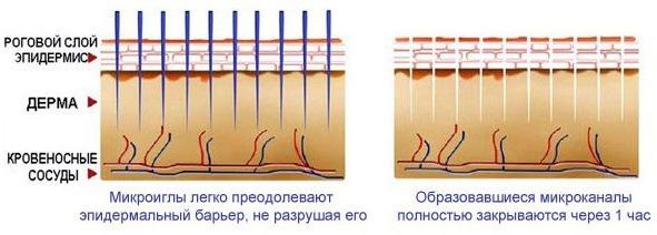 Дермапен: оценки о процедуре с аппаратом-филлером для раскольнической мезотерапии. Где приобрести, как применять