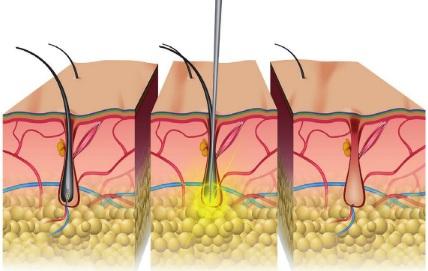 Электроэпиляция: отзывы и эффективность, последствия. Как делается на лице, теле, зоне бикини, подмышек