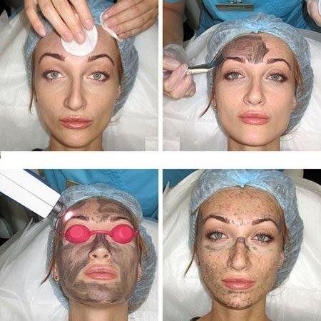 Лазерная шлифовка лица: фракционная, алмазная, СО2. Отзывы, фото, цена процедуры в салоне и как сделать в домашних условиях