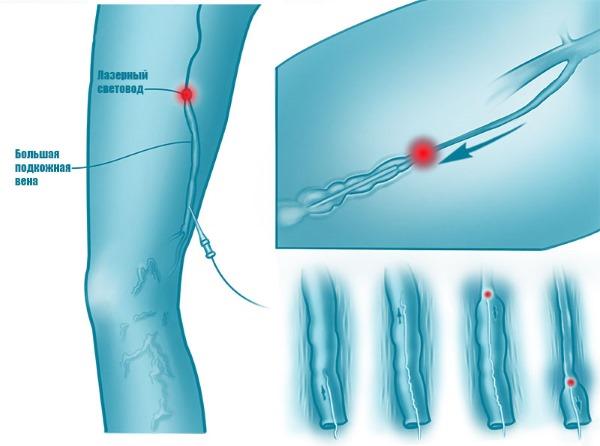 Лазерное удаление вен на ногах при варикозе. Как проходит операция, послеоперационный период, реабилитация, последствия, осложнения