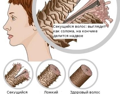 Маски для сухих волос против выпадения, для роста и густоты. Рецепты, как приготовить в домашних условиях