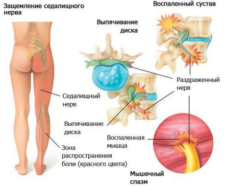 Массаж LPG для лица и тела. Отзывы, фото до и после, эффективность
