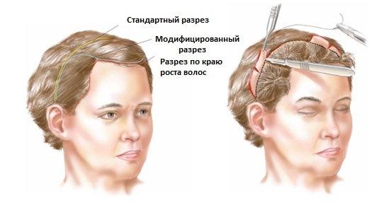 Пластика лица. Фото до и после контурной операции гиалуроновой кислотой. Цены, отзывы