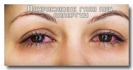 Причины темных кругов вокруг глаз у женщин. Чем лечить черные круги