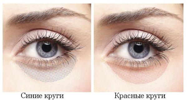 Тёмные круги под глазами у мужчин причины возникновения