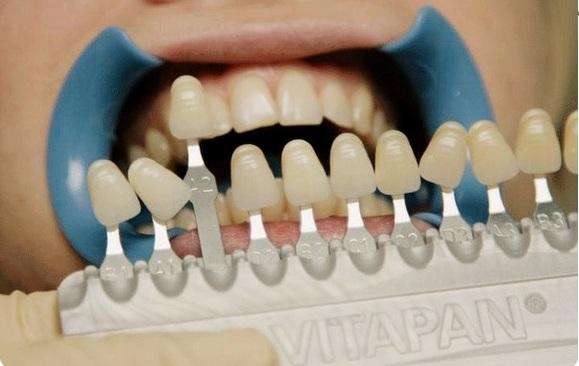 Что такое виниры, как их ставят на зубы, плюсы и минусы, показания. Стоимость