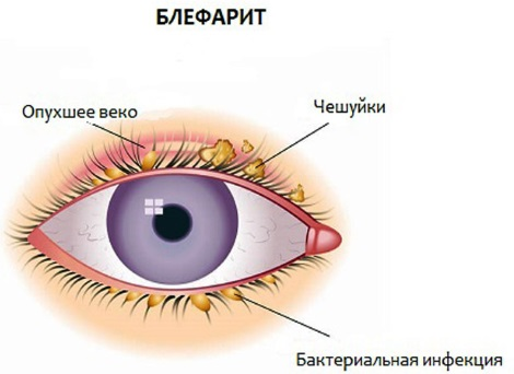 Блефарогель 2. Инструкция по применению, как наносить при ячмене, для лица, век, роста ресниц, от отека под глазами. Аналоги
