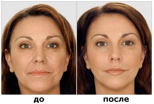 Ботулинотерапия в косметологии - что это такое, эффективность и результаты, отзывы. Диспорт, Ксеомин, Ботокс