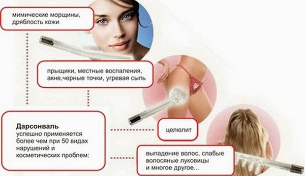Дарсонвализация - что это такое в косметологии, польза процедуры для кожи лица, головы, век, волос, аппараты. Показания и противопоказания, эффективность