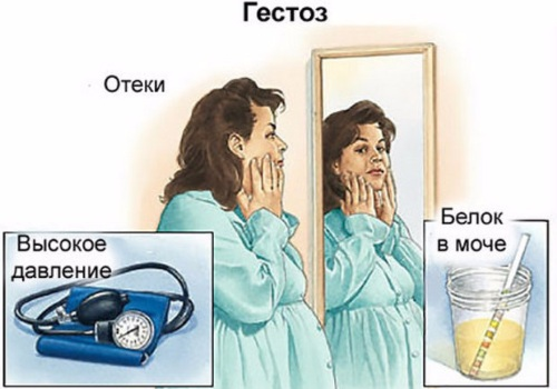 Как принимать таблетки Фуросемид для похудения. Инструкция по применению, показания, действие
