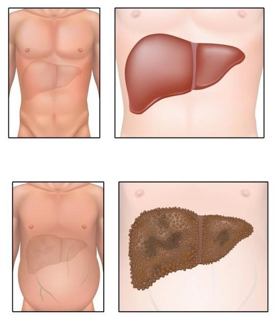 Как принимать фуросемид для похудения: инструкция, отзывы врачей и.