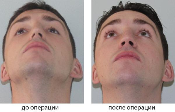 Искривление носовой перегородки. Симптомы, причины и последствия. Операция септопластика: показания, противопоказания, виды и особенности