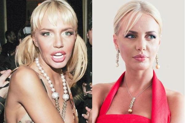 Маша Малиновская до и после пластических операций. Фото, возраст, рост и вес