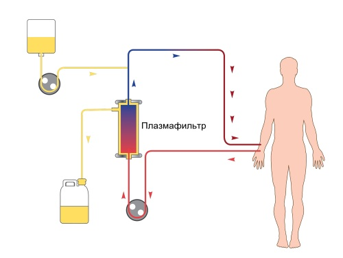 Плазмофорез - показания к применению в гинекологии, при беременности, аллергии, псориазе. Возможные побочные эффекты, цена процедуры