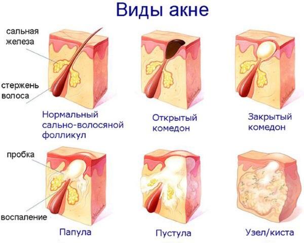 Прыщи на щеках. Причины у женщин, какой орган не в порядке, почему появляются. Лечение в домашних условиях