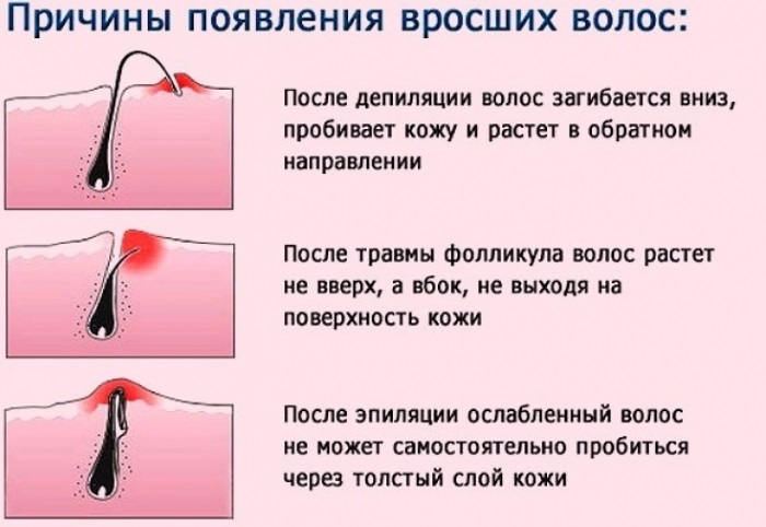 Шугаринг Аравия. Отзывы косметологов о пасте. Обучение, как делать депиляцию