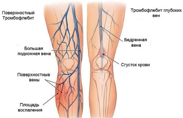 Склерозирование вен на ногах - что это за процедура, реабилитационный период, возможные осложнения и последствия